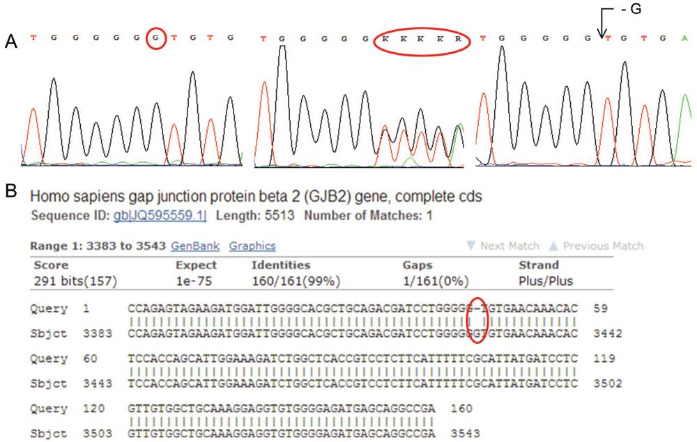 """A: Sekvenogram genu pro GJB2 (Connexin 26). Jedná se o deleci báze G (vlevo referenční """"wild type"""" sekvence, uprostřed heterozygotní stav, vpravo homozygotní stav). Mutace je asociována s tzv. Nesyndromovou hluchotou (DFNB1). (Za poskytnutí sekvenogramů děkujeme RNDr. Martině Putzové, Ph.D.) B: Výstup z databáze BLAST – porovnání analyzované sekvence genu pro GJB2 (horní řádky """"Query"""") s referenční sekvencí (spodní řádky """"Sbjct""""). Označeno je místo bez homologie."""