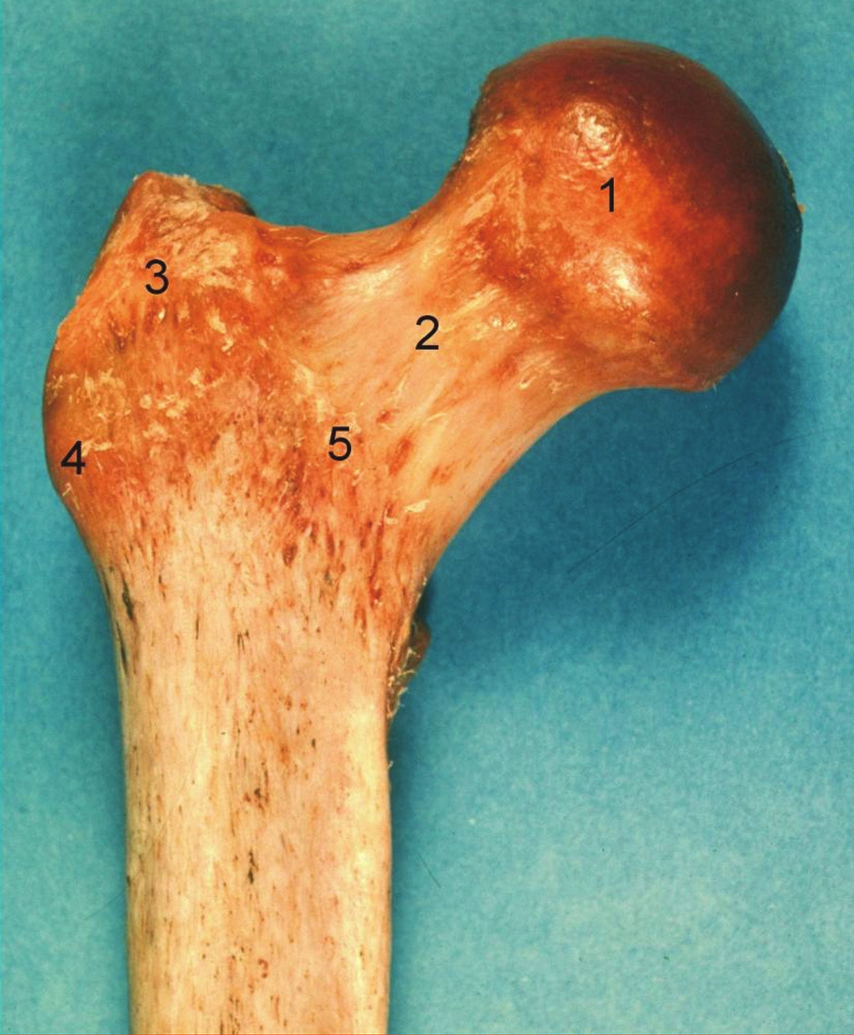 Proximální femur, pravá strana, pohled zpředu: 1 – caput femoris, 2 – collum femoris, 3 – trochanter major, 4 – tuberculum vastoabductorium, 5 – linea intertrochanterica. Fig. 1: Proximal femur, right side, anterior aspect: 1 – caput femoris, 2 – collum femoris, 3 – trochanter major, 4 – tuberculum vastoabductorium, 5 – linea intertrochanterica.