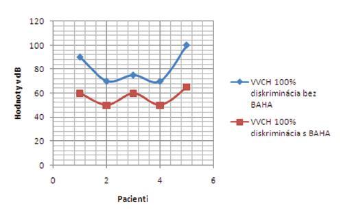 Výsledky slovnej audimetrie v skupine vrodených vývojových chýb bez a s BAHA testerom – 100% diskriminácia.