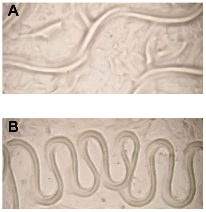 Aberrant translocation of <i>C. elegans</i> on <i>Y. pseudotuberculosis.</i>