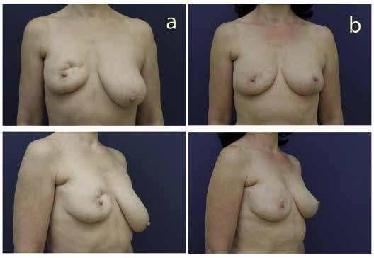 Rekonstrukce prsu přenosem vlastní tukové tkáně u pacientky po segmentektomii (a – před operací, b – po operaci)