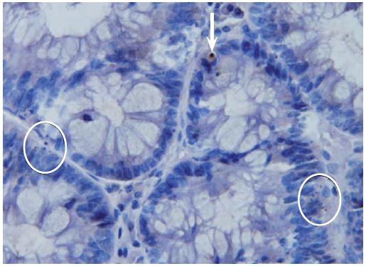 Imunohistochemická detekce aktivované kaspázy-3 ve vzorcích dobarvených hematoxylinem. Zvětšeno 500×. Na obrázku jsou znázorněny aktivovaná kaspáza-3 pozitivní buňky (šipka). Rovněž jsou zde patrny dva shluky ≥ 3 apoptotických tělísek (v kroužku), jež by při hodnocení ve vzorcích barvených hematoxylin-eozinem byly považovány za pozitivní, avšak pozitivitu aktivované kaspázy-3 nevykazovaly. Apoptotická tělíska vykazovala pozitivitu jen tehdy, pokud v nich byla zachována cytoplazmatická hmota. Jestliže tělísko obsahovalo pouze jaderný materiál, pozitivita nebyla zachycena. Fig. 1. Immunohistochemical detection of activated caspase-3 with subsequent haematoxylin staining. Original magnification ×500. Activated-caspase-3 positive cells are shown in the picture (arrow). Two clusters ≥ 3 of apoptotic bodies (in circle) are also present; these would be positive for haematoxylin-eosin staining, but have not shown positivity of activated-caspase-3. Apoptotic bodies were only seen if the cytoplasmatic tissue was maintained. If the apoptotic body only contained nuclear ma-terial, positivity was not observed.