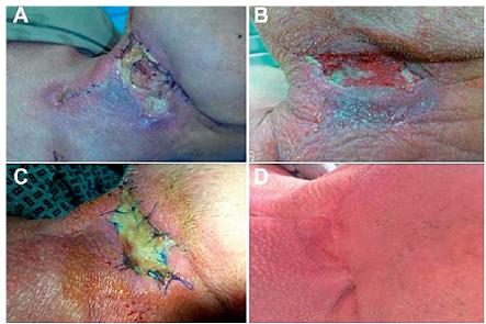 Pacient 3 A – den 0; aplikace VAC, B – den 8, C – den 8; po aplikaci dermoepidermálního štěpu, D – stav při poslední kontrole.