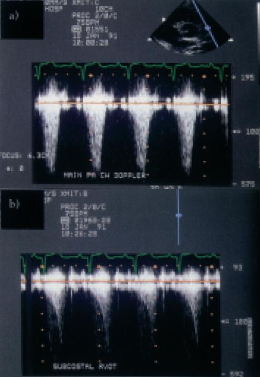 Těžká stenóza plicnice objevená náhodně u dospívajícího. a) Kontinuální spektrální dopplerovské vyšetření ukazuje výtokovou rychlost 5 m/s, odpovídající vrcholovému systolickému gradientu 100 mm Hg. b) Při zaměření ultrazvukového paprsku podél výtokového traktu pravé komory se ukazuje dynamický infundibulární gradient s vrcholovou endsystolickou hodnotou okolo 65 mm Hg.