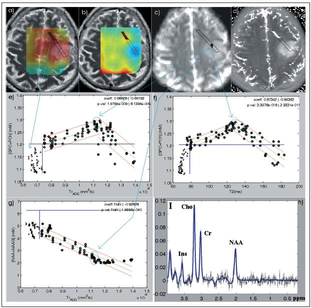 Obr. 4. MR obrazy a jejich korelace u pacienta s gliomem stupně II. a) cholinová mapa; b) NAA + NAAG mapa zobrazené na T2 váženém MR obraze; c) difuzní obraz; d) T2 relaxační mapa; e) korelace [Cho] – TrADC; f) korelace [Cho] – T2; g) korelace [NAA] – TrADC; h) spektrum (PRESS TR/TE/NA = 1 510 ms/135 ms/4) z místa odebrané biopsie (Oligodendrogliom GII) vyznačeného na obraze c); a), b), d) zvýrazněné pixely odpovídají křížkům na grafech e– g. Tyto oblasti odpovídají předpokládané zdravé tkáni. e– g) Zelená přímka představuje lineární fit dat. Červené čáry odpovídají 95% intervalu spolehlivosti pro fit lineární regrese. Modré čáry ukazují maximální hodnoty daných veličin podle dat z kontrolních skupin.