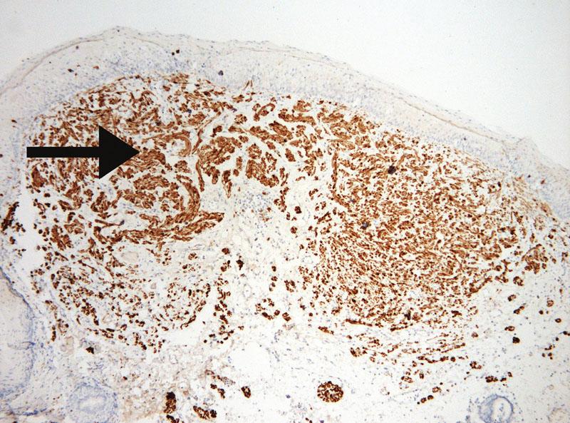 Nádorové buněčné elementy neurofibromu silně pozitivně exprimující S-100 protein (viz černá šipka) (zvětšeno 10krát).