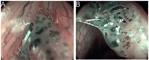Papilom hlasivky, HDTV NBI zvětšovací endoskopie (A, B). Patrné jsou mnohočetné pravidelné papily, kryté dlaždicovým epitelem, s centrální kapilární kličkou, které jsou typické pro papilomy.