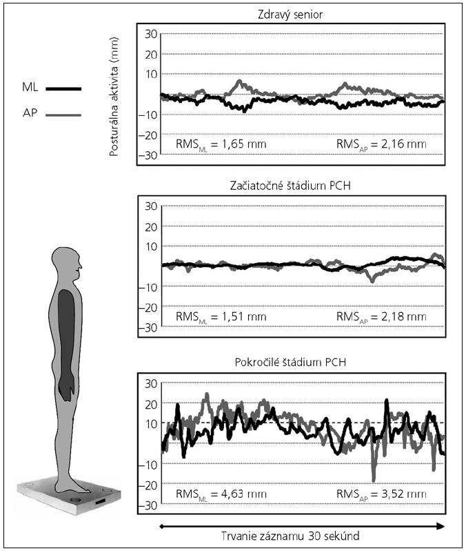 Originálne krivky posturálnej aktivity v medio-laterálnom (ML) a antero-posteriórnom (AP) smere.