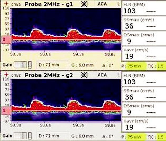 TCD záznam na a. cerebri media Zobrazuje nízké maximální rychlosti v systole a diastole (SSmax a Dsmax), nízkou průměrnou maximální rychlost (Xavr).