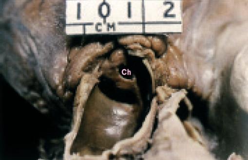 Středně těžká stenóza plicnice v pohledu ze shora otevřenou plicnicí.