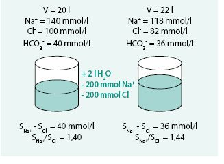 Model kombinace retence vody při současné depleci sodíku (kombinace diluční a depleční hyponatremie)