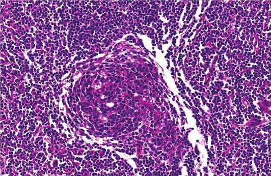 Detailní histologické zobrazení Castlemanovy choroby Fig. 4 : Detailed image of Castleman´s disease