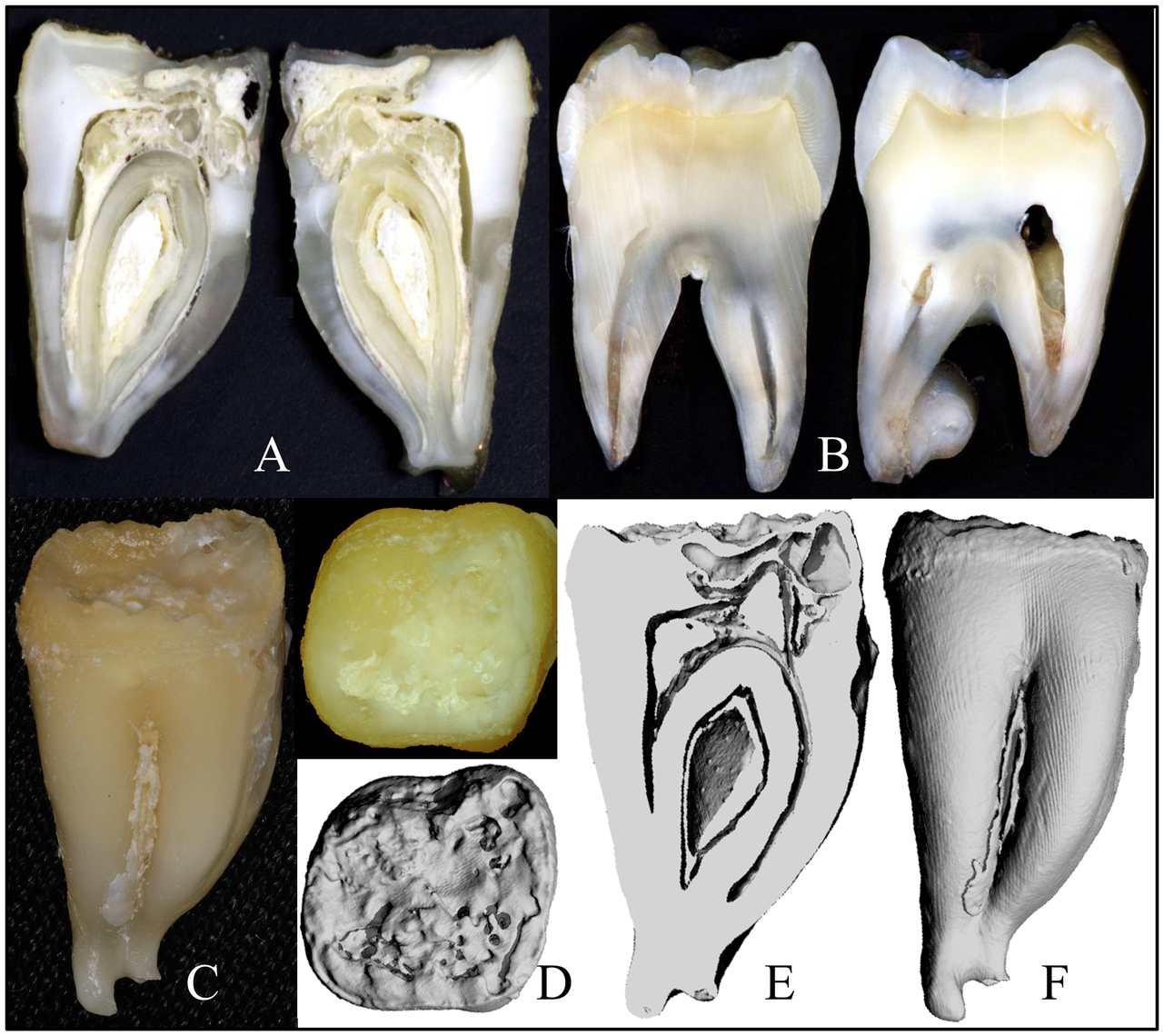 Images of <i>FAM20A</i><sup>−/−</sup> tooth #18.