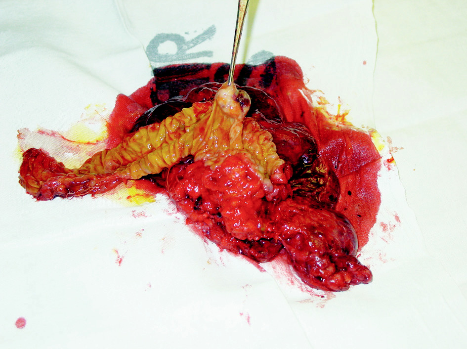 Resekát nádoru s duodenem a hlavou pankreatu