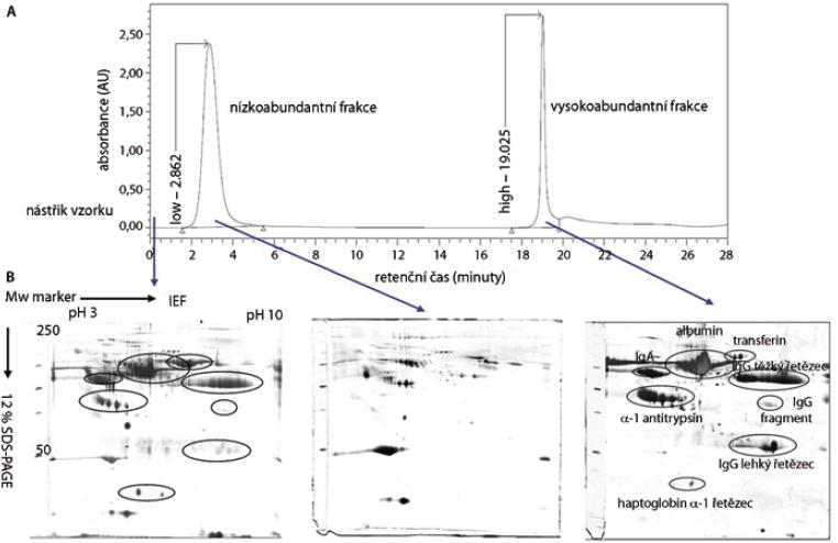 Multiple Afinity Removal System (MARS) – metoda pro odstranění 6 vysokoabundantních proteinů krevní plazmy. (A) Chromatografický záznam eluce jednotlivých frakcí. (B)  reprezentativní 2-DE gely proteinů plné krevní plazmy (45 μg), nízkoabundantní (100 μg) a vysokoabundantní (350 μg) frakce proteinů krevní plazmy.