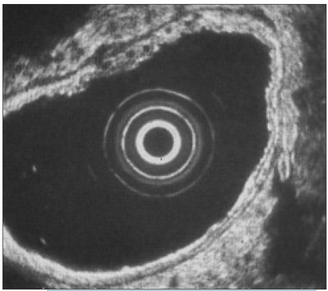 EUS obraz žaludku (snímek pochází z vlastních souborů pacientů).