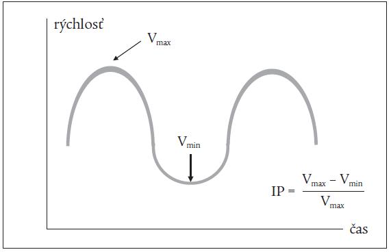 Schéma doplerovského signálu z portálnej vény a výpočtu indexu pulzatility (IP).