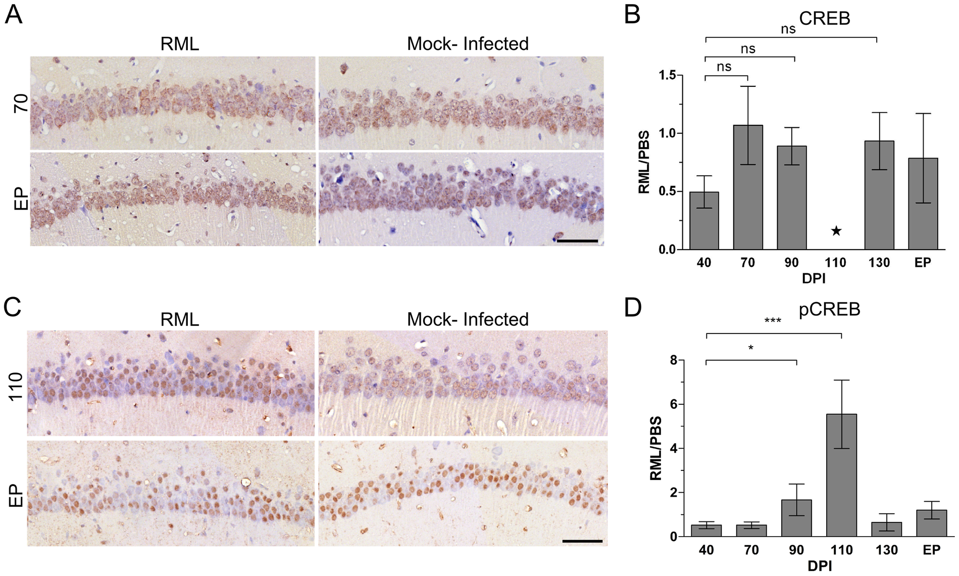 Immunohistochemical detection of CREB in CA1 hippocampal neurons reveals an up-regulation of the phosphorylated form of the protein during early prion disease.