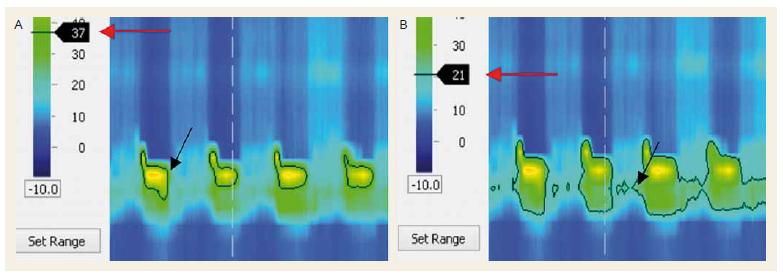 Určovanie end exspiračného a end inspiračného tlaku LES pred podaním NTG. Izobara je v oblasti LES a spája miesta topografickej mapy s rovnakým tlakom. A. izobarická krivka spája miesta s end inspiračným tlakom, ktoré sú dané kontrakciou bránice v inspíriu (čierna šípka) – nastavená na 37 mm Hg (červená šípka); B. izobarická krivka je nastavená na 21 mm Hg (červená šípka), kde je vidieť najnižší tlak v strede medzi inspíriami (čierna šípka). Fig. 2. Determination of end expiratory and end inspiratory LES pressure before administration of NTG. The isobaric contour is in the region of the LES and connects the points of the topographic map with equal pressure. A. The isobaric contour connects the points with the end inspiration pressure which is specified by the diaphragmatic contraction at inspiration (black arrow) – set to 37 mm Hg (red arrow); B. The isobaric contour is set to 21 mm Hg (red arrow) where the lowest pressure is seen in the middle between the inspirations (black arrow).