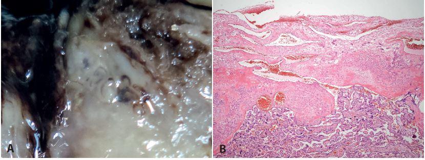 <b>Normální spirální arterie. A</b>: makrofoto z maternálního povrchu placenty - normální spirální arterie. <b>B</b>: normální spirální arterie (HE, zvětš. 40x).