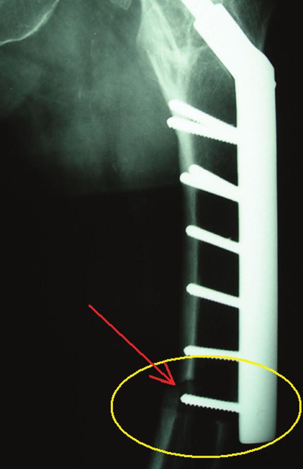 Obr. 2c: Stav 1 rok po první reoperaci, zlomenina proximálního femuru zhojena, zlomenina femuru v oblasti distálního kortikálního šroubu po novém pádu Fig. 2c: One year after the first reoperation, healed proximal femoral fracture, fracture of the femur in the area of the distal cortical screw after a new fall