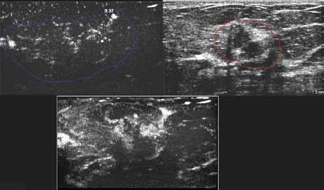 Zdánlivě drobné ložisko maligní vizáže (na obrázku vlevo nahoře), MVI prokazuje minimálně trojnásobnou velikost.