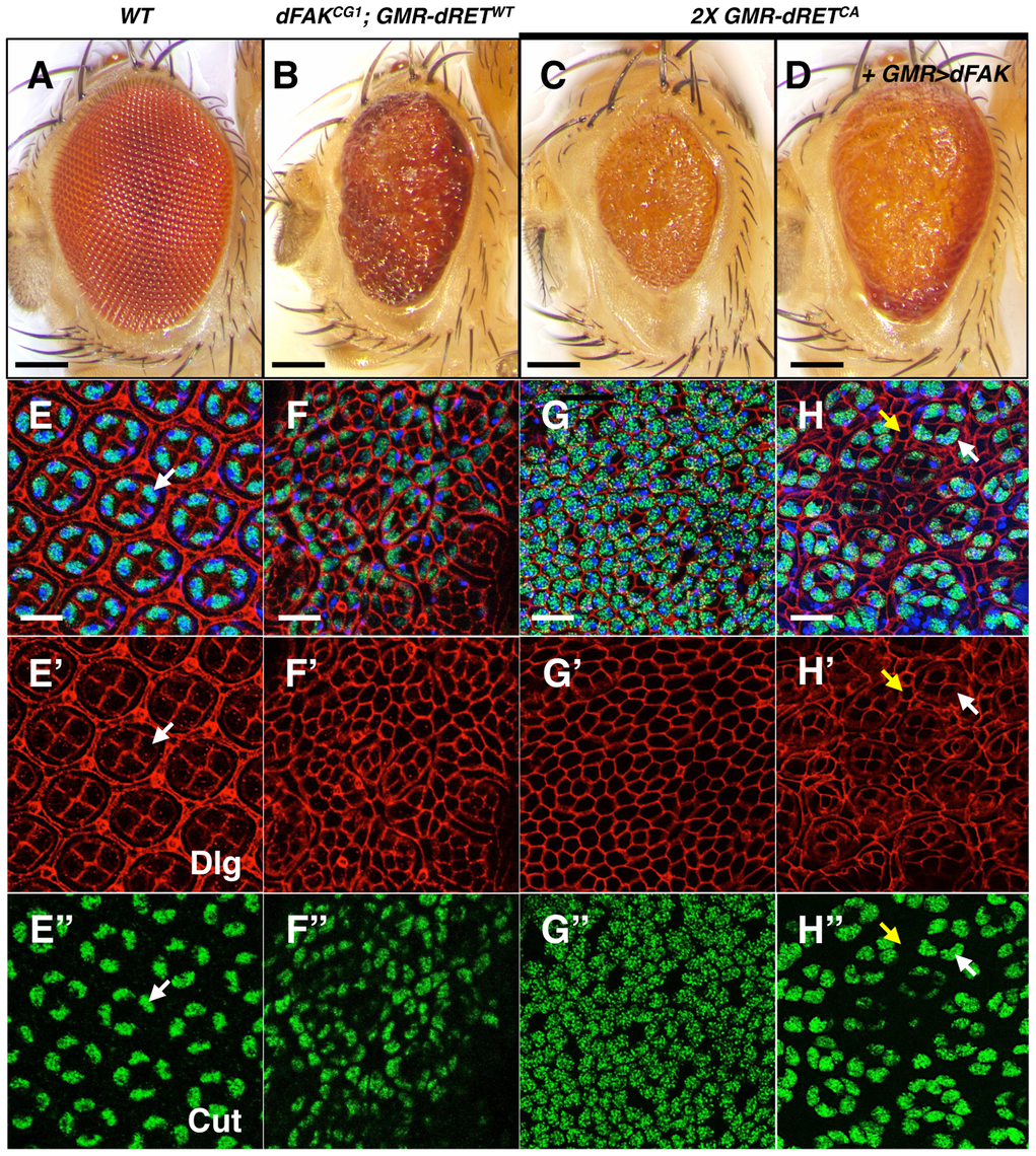 High relative levels between RET and FAK induce ectopic cone cell differentiation in the eye.