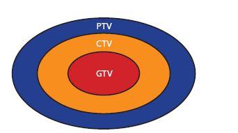 Cílové objemy v radioterapii Fig. 1 Target volumes for radiation therapy