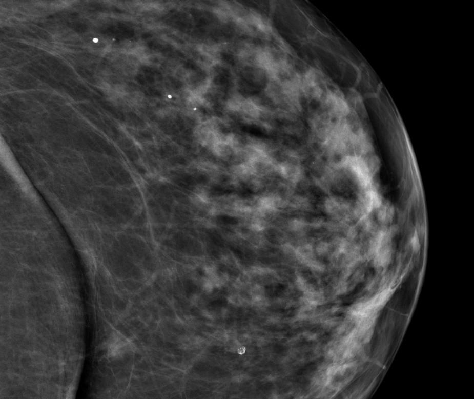 Pro nově diagnostikovaný drobný stín dorzálně ve vnitřním kvadrantu levého prsu při SGMG vyšetření v roce 2012 (obr. 9) bylo indikováno doplňující UZ vyšetření a následně core cut biopsie.