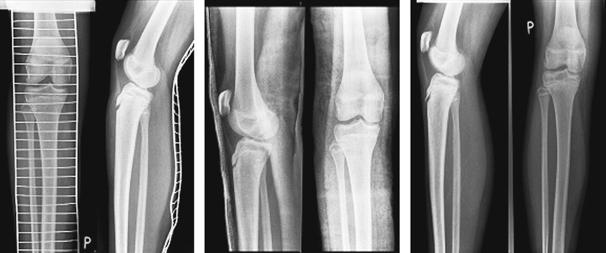 a, b, c. Pacient (č. 17), žena, věk v době úrazu 14, podle rentgenu SH II s distrakcí 6 mm, REP + SF, léčba bez komplikací