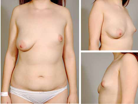 Fig. 4. A 17-year-old patient with tuberous breast malformation on the left and with a ptotic right breast