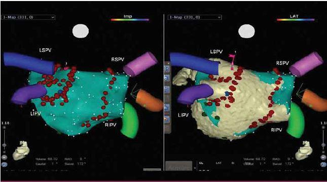Radiofrekvenční izolace plicních žil za použití elektroanatomického mapování.