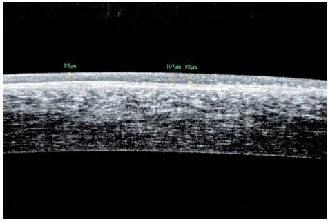 Edém epitelu rohovky, nepravidelnost bazalní membrány (OCT snímek – oční koherenční tomografie)