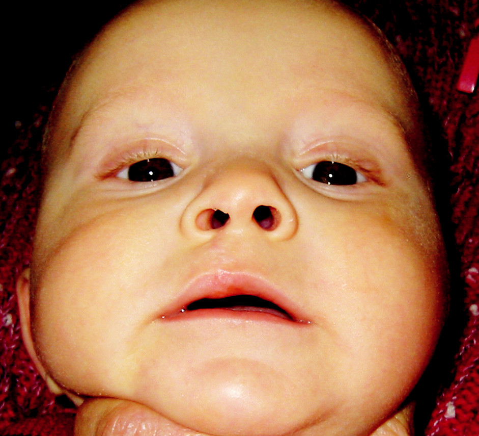 Fig. 10. First patient 8 months after primary lip suture
