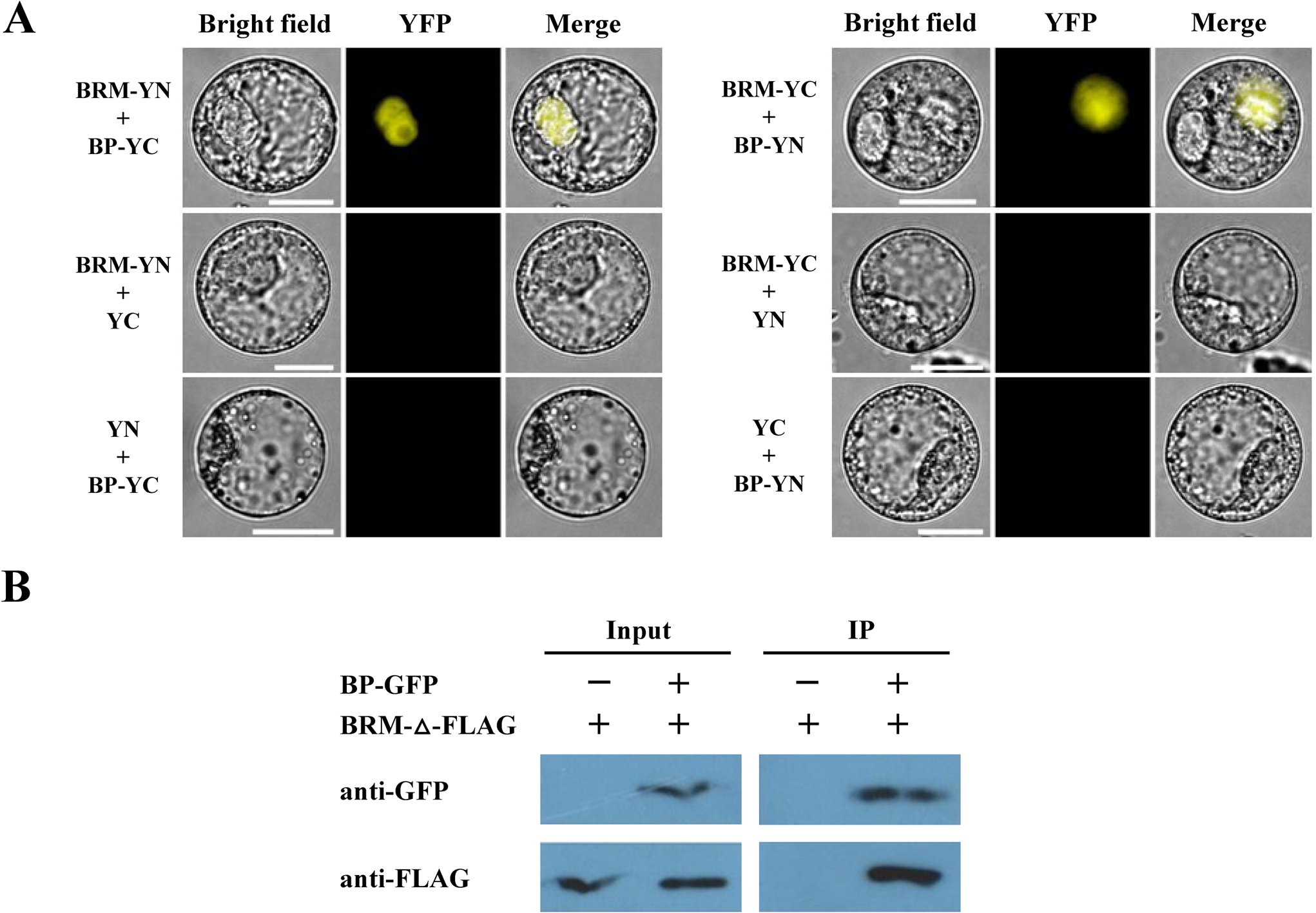 BRM interacts with BP <i>in vivo</i> detected by BiFC and Co-IP assays.