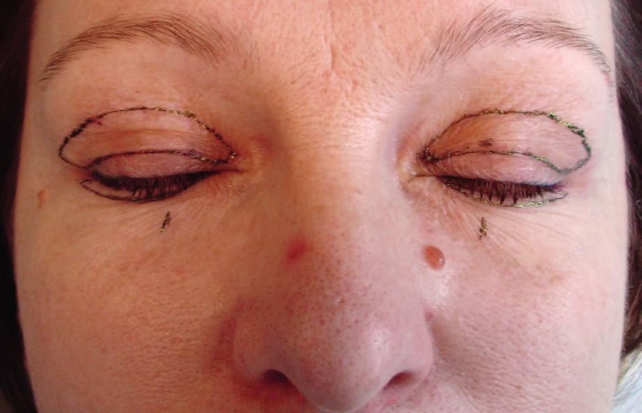 Nákres kožní excize horních víček