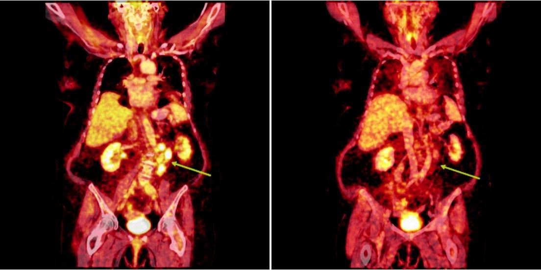 Srovnání snímků integrované pozitronové emisní tomografie (s použitím 18F-fluoro-deoxy-glukózy) a počítačové tomografie při relapsu (a) a po skončení léčby 90Y-ibritumomab tiuxetanem (b) u prvního pacienta s folikulárním lymfomem.