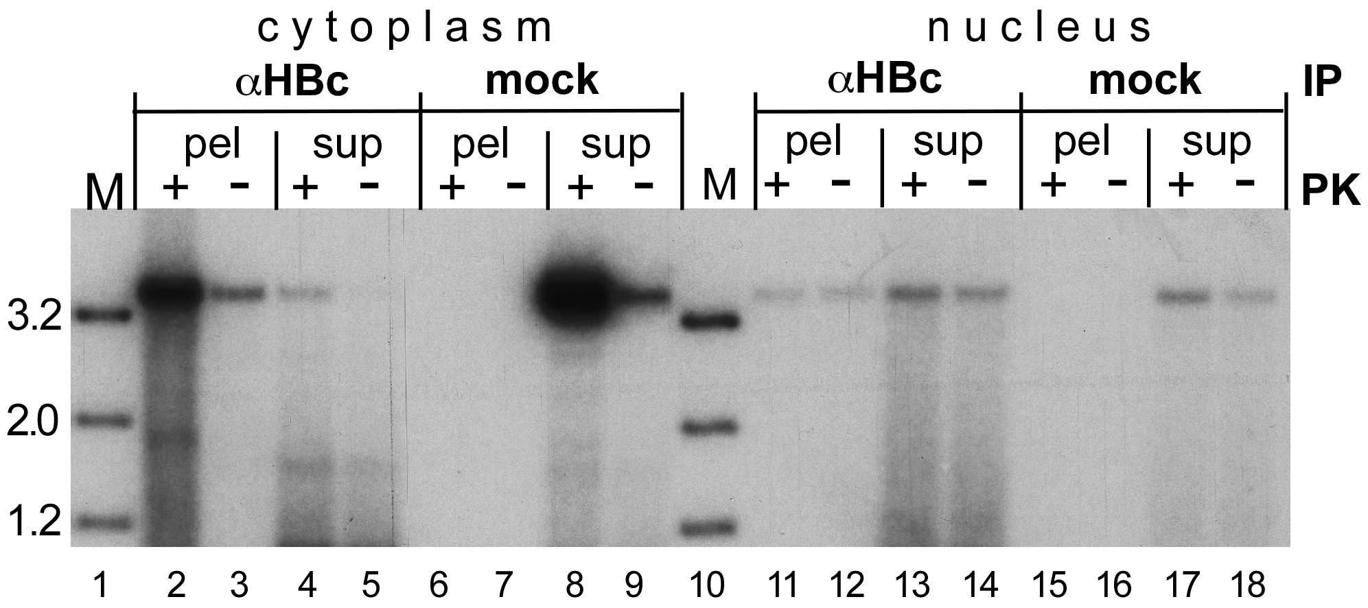 Evidence for a fraction of completely uncoated, largely protein-free nuclear HBV RC-DNA.