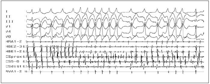 Fibrilace síní. Fibrilace síní (rychlé a nepravidelné, chaotické, síňové potenciály ve svodech HRA, HBE a CS), v povrchových svodech s různě vyjádřeným stupněm preexcitace (různě široké QRS-komplexy) u pacienta s akcesorní spojkou v posteroseptální oblasti (negativní delta-vlna ve svodech II, III).