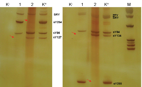 Výsledek vyšetření mikrodelece AZF a,b,c. 1 - pacient - delece AZF b 2 - pacient - delece AZF c K+ pozitivní kontrola K- negativní kontrola M - marker molekulových hmotností detekce oblasti AZFa: sY84, sY86, detekce oblasti AZFb: sY127, sY134 detekce oblasti AZFc: sY254, sY255