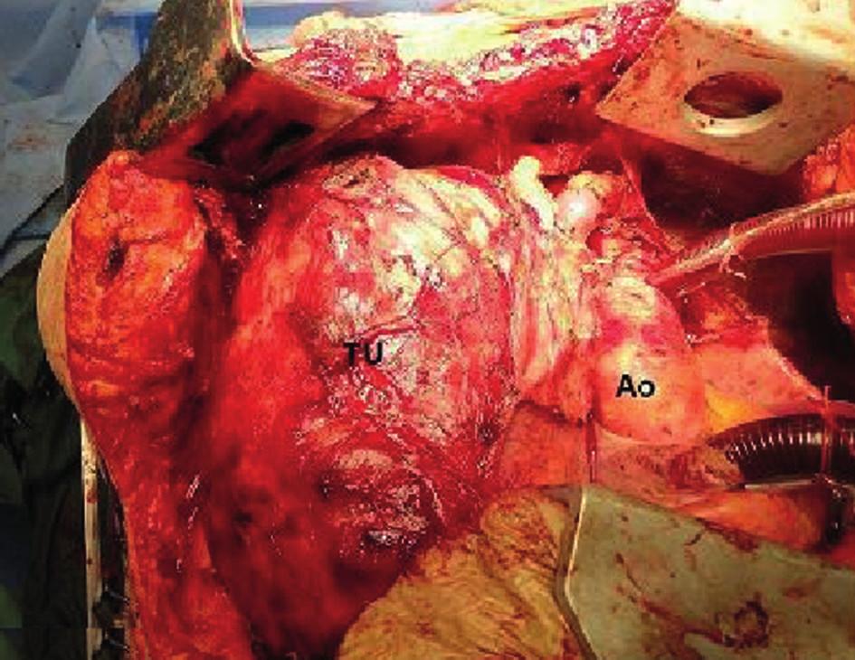 Tumor, kazuistika 3 Fig. 4: Tumor, case report 3