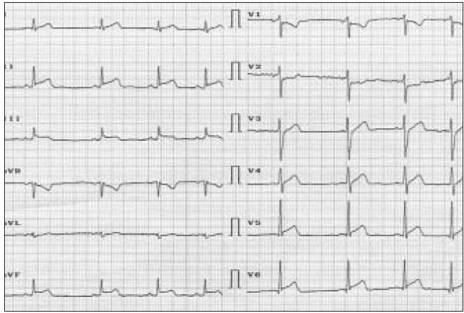 Obr. 2a. EKG nález u 24ročného muža, ktorý vykonával niekoľkodňovú zvýšenú fyzickú aktivitu počas febrilného ochorenia.