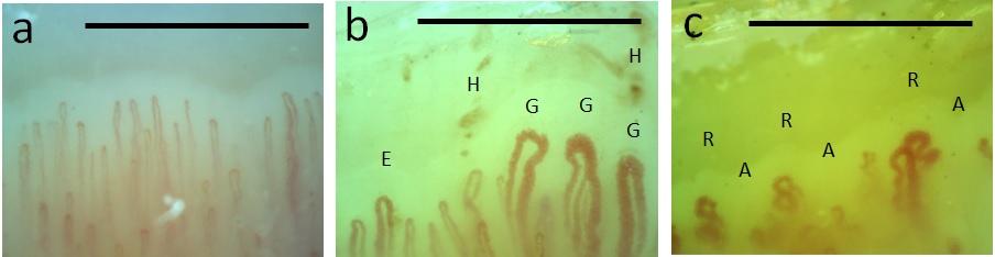 Kapilaroskopie nehtových valů: a) normální nález; b, c) patologický nález charakteristický pro SSc