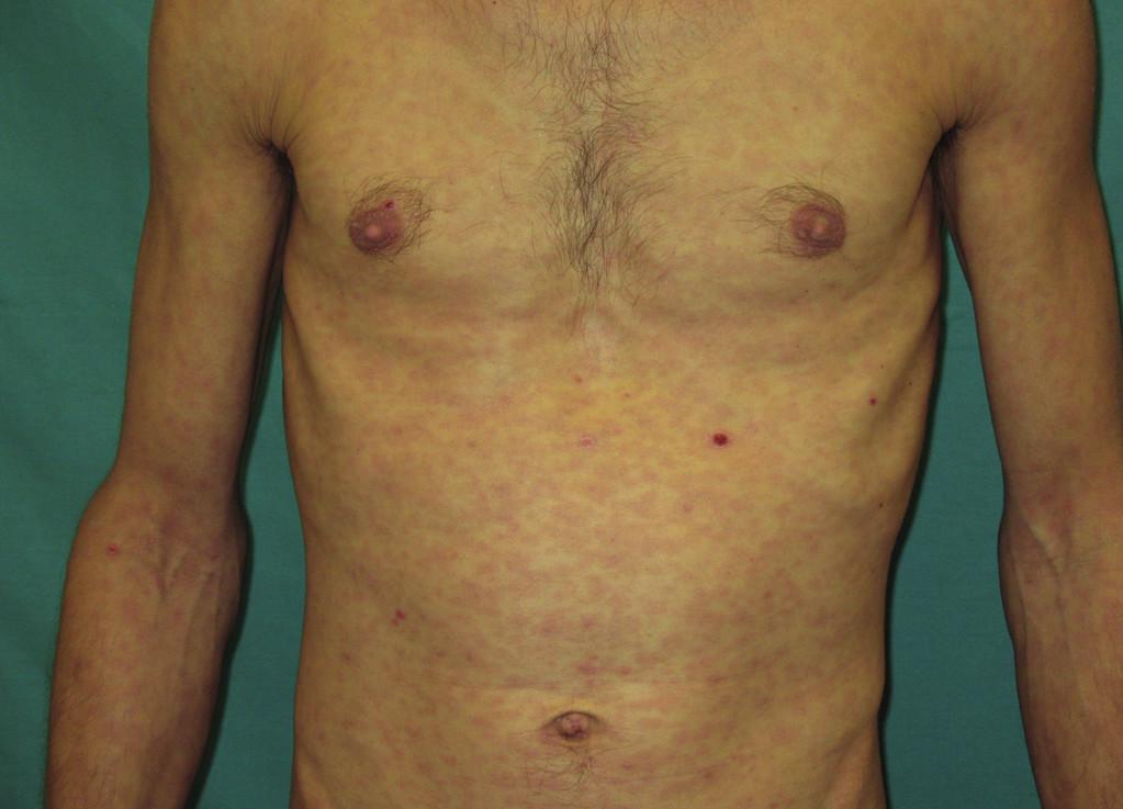 Generalizovaný makulózní exantém, drobné povrchové exkoriace a ikterické zbarvení kůže