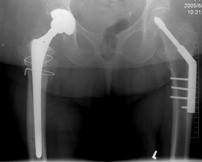Implantace TEP se 2 pomocnými cerklážemi