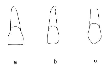 a – střední řezák: rovná incizální hrana, pravoúhlý tvar růžků, kvadratický tvar korunky, b – laterální řezák: meziální ostrý růžek, distální část zaoblená, c – špičák: ostrý, dlouhý hrot špičáku