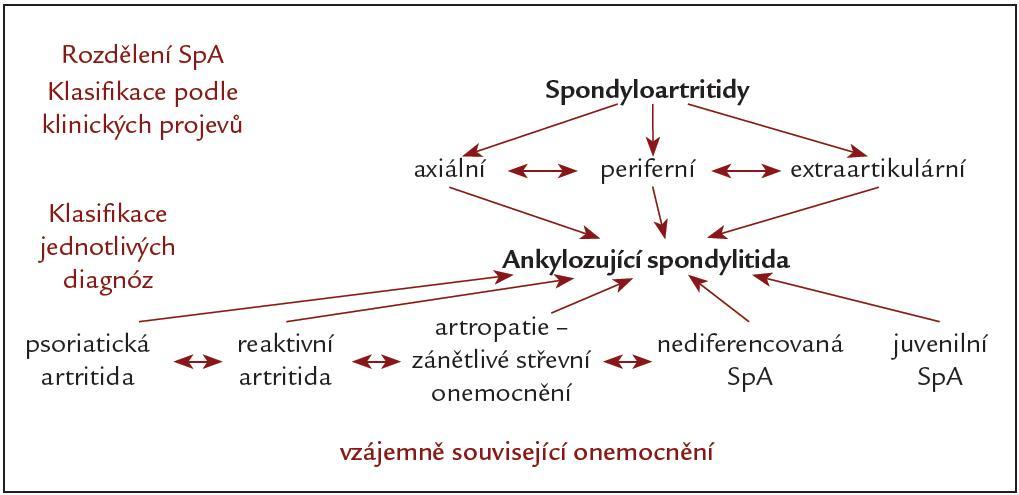 Spondyloartritidy.