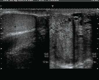 Tumor levého varlete, srovnání se zdravou stranou.