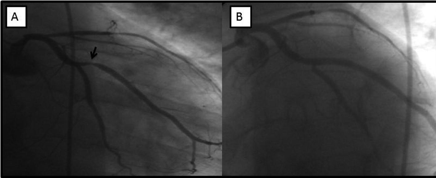 Včásti Aangiograficky patrná významná stenóza marginální tepny (šipka), vlevé části obrázku stav po implantaci stentu soptimálním konečným výsledkem.