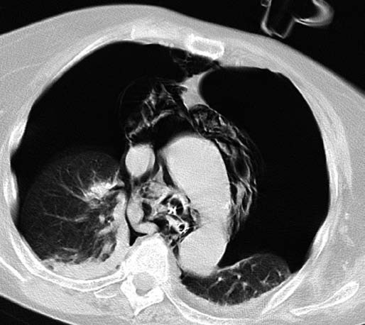 CT plic – bilaterální pneumothorax. Fig. 2. CT of the lungs - bilateral pneumothorax.